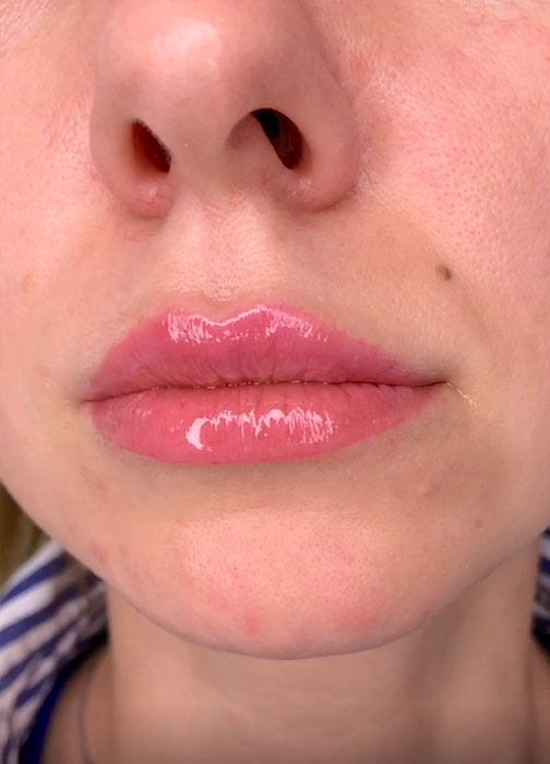 IDN-correction-lips-